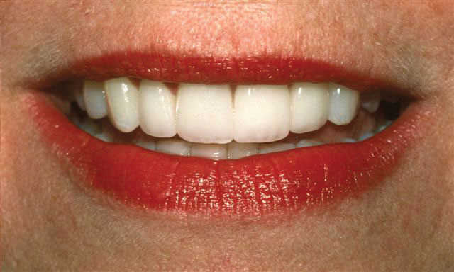 After Cerec Restoration (Broken front tooth restored with a Cerec veneer)